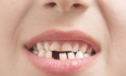 Gold Teeth by Bill Melton